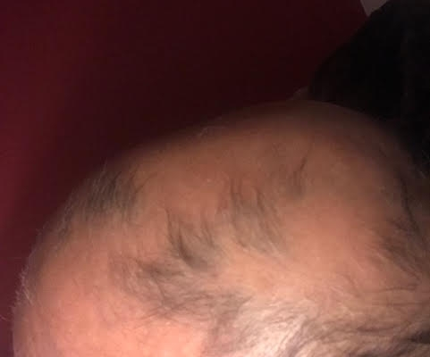 Alopecia Areata regrowth before and after
