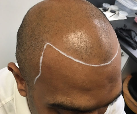 SMP for Hair Loss