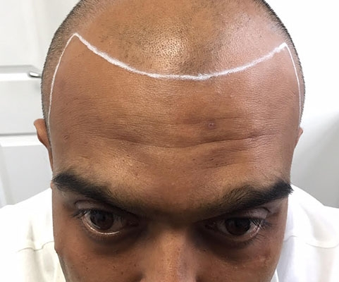 SMP for Male Pattern Hair Loss
