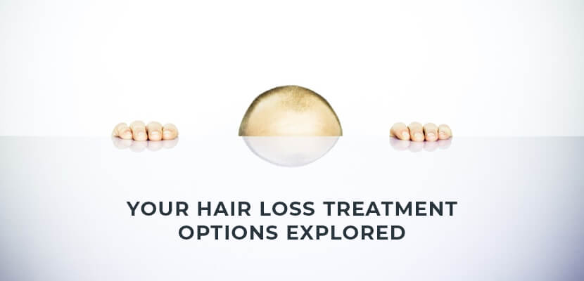 Hair loss treamtment options